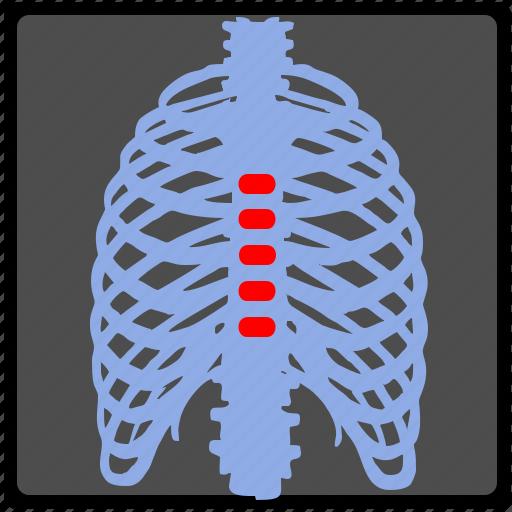 back, backbone, pain, ray, spine, vertebra, x icon