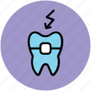 braces, dental aid, dental care, dental support, dental treatment, tooth, tooth braces icon