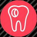 caries, dentist, tooth, dental, hole, stomatology