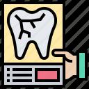 dental, healthcare, radiology, ray, x
