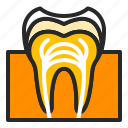 cavity, decay, dental, dentistry, rootcanal, stoatology, tooth icon