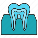 dental, gum, tooth