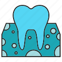care, dental, gum, root, tooth