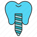 care, dental, dental implant, implant, prosthesis, teeth, tooth