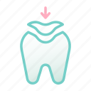 dental, health, hygiene, medical, tooth, tooth filling, treatment