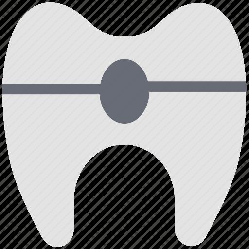 braces, dental, healthcare, protect, protection, stomatology, teeth braces icon