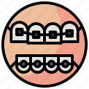 braces, dental, dentist, medical, mouth, teeth