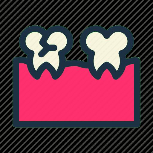 Cracked, dental, dentist, medical, medicine, teeth, tooth icon - Download on Iconfinder