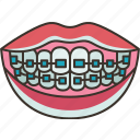 braces, dental, treatment, beauty, healthcare icon