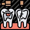 endodontist, treatment, canal, operation, dentistry