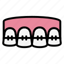 brackets, dental, dentist, health, teeth, tooth icon