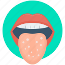 disease, infection, mouth infection, tongue disease