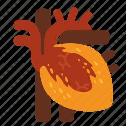 cholesterol, disease, dyslipidemia, heart, heart attack, hypercholesterolemia, stroke icon