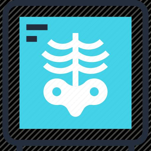 bones, diagnostic, medicine, ribs, skeleton, x ray, xray icon