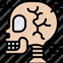 xray, skull, fracture, bones, scanning