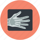 hand skeleton, hand xray, radiology, radioscopy, x-ray icon