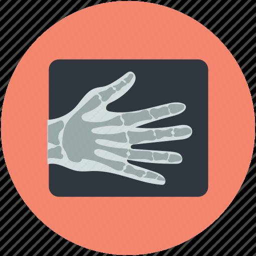 hand skeleton, hand xray, radiology, radioscopy, x-ray icon