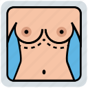 augmentation, body, boobs, female, medical, nipple, surgery