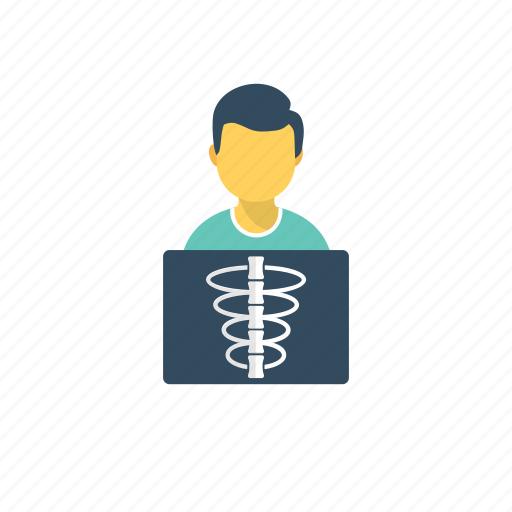 broken ribs, chest x-ray, rib fracture, ribs x-ray, x-ray icon