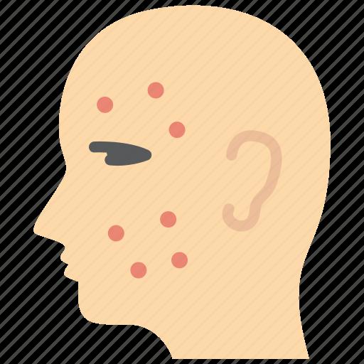acne, allergy, dermatology icon