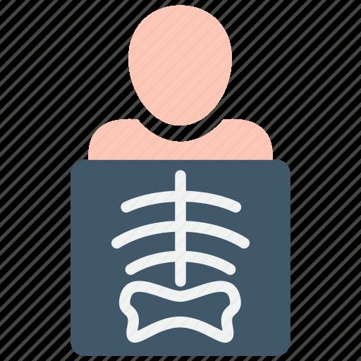 radiology, xray icon