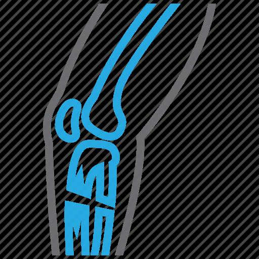 bone, broken, injury, leg, orthopedics icon