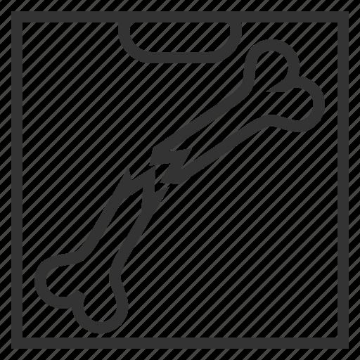 bone, line, ray, skeleton, x, x-ray, xray icon