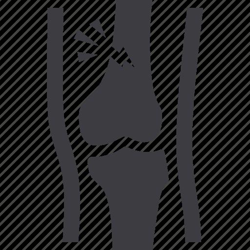 broken leg, injury, leg, orthopedics icon