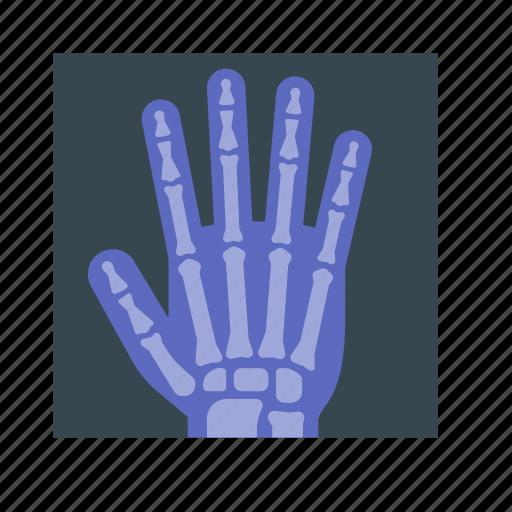 bone, broken bone, hand, medical, medicine, ray, x icon