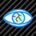 lens, injury, ophthalmology, eye, disease, treat