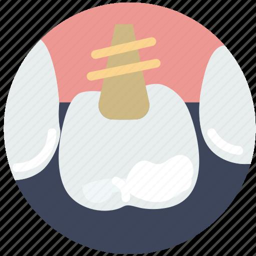health, healthcare, implant, medical, molar icon