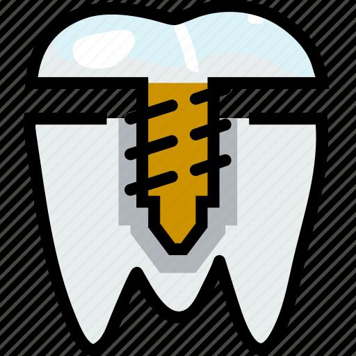crown, health, healthcare, implant, medical, premolar icon