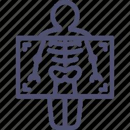 chest, fluorography, medicine, ray, ribs, roentgen, x, xray icon